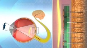 bio-retina-in-eye-diagram-640x353